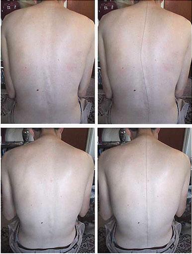 scoliosis acupunctuur praktijk tilburg
