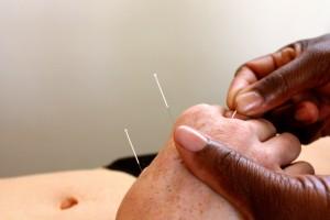Naald in hand Acupunctuur Praktijk Tilburg