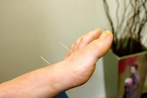 Acupunctuur Praktijk Tilburg naald in voet